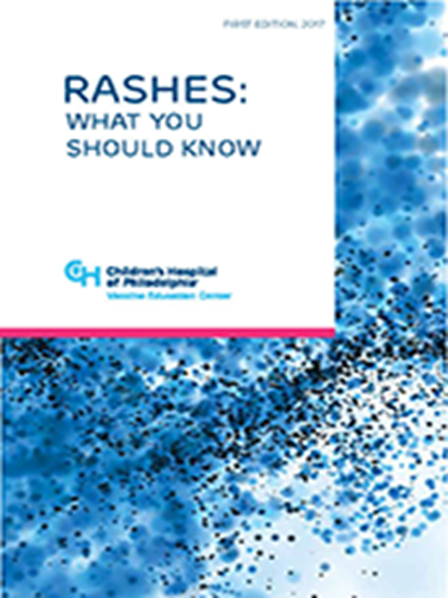 Picture of Rashes:  What You Should Know